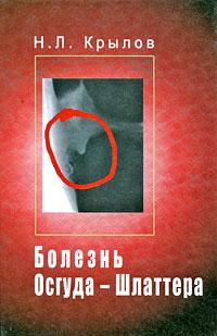 Болезнь Осгуда-Шлаттера. Н. Л. Крылов