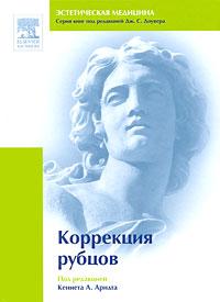 Zakazat.ru Коррекция рубцов. Под редакцией Кеннета А. Арндта