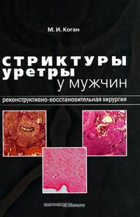 Стриктуры уретры у мужчин. Реконструктивно-восстановительная хирургия