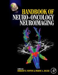 Handbook of Neuro-Oncology Neuroimaging herbert b newton handbook of neuro oncology neuroimaging