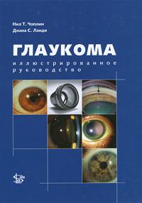 Глаукома. Иллюстрированное руководство. Нил Т. Чоплин, Диана С. Ланди