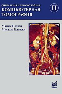 Спиральная и многослойная компьютерная томография. В 2 тах. Том 2. Матиас Прокоп, Михаэль Галански