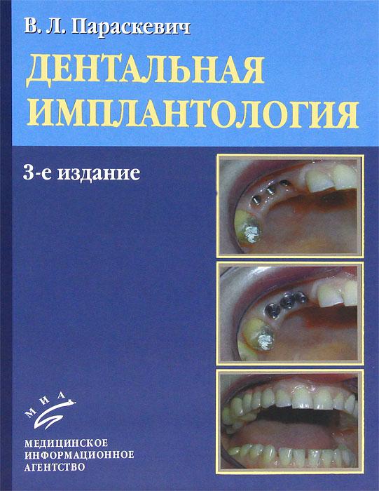 Zakazat.ru: Дентальная имплантология. В. Л. Параскевич