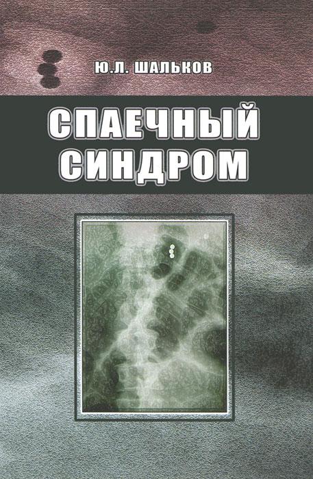 Спаечный синдром. Ю. Л. Шальков