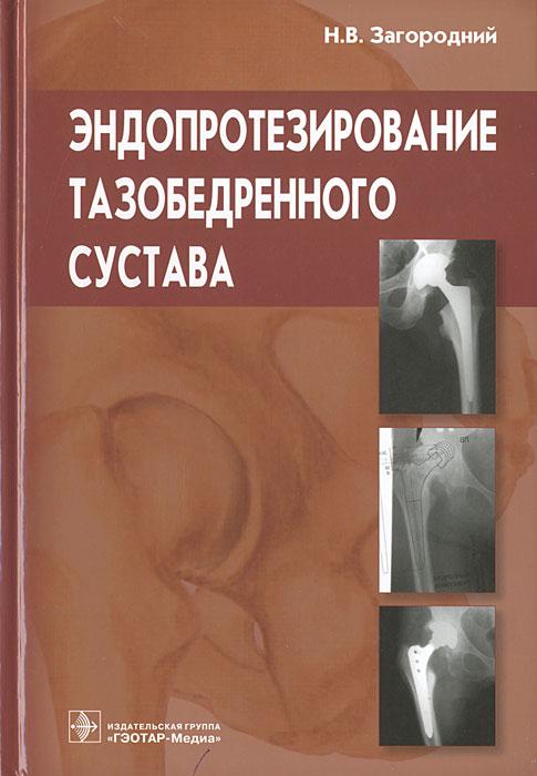 Н. В. Загородний Эндопротезирование тазобедренного