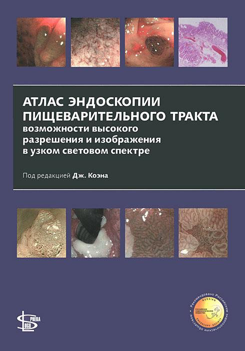 Атлас эндоскопии пищеварительного тракта. Возможности высокого разрешения и изображения в узком световом спектре
