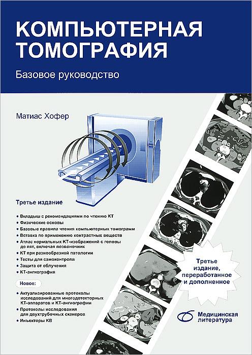 Компьютерная томография. Матиас Хофер