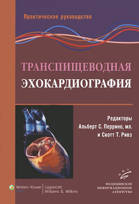 Транспищеводная эхокардиография