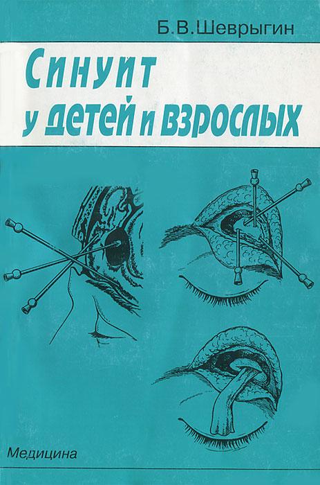 Синуит у детей и взрослых. Б. В. Шеврыгин