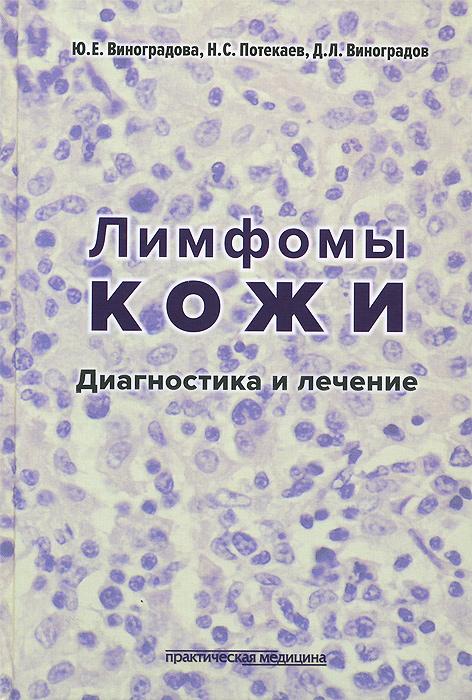 Лимфомы кожи. Диагностика и лечение. Ю. Е. Винградова, Н. С. Потекаева, Д. Л. Виноградов
