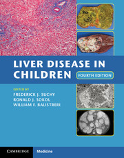 Liver Disease in Children the name of the blade book three frail human heart