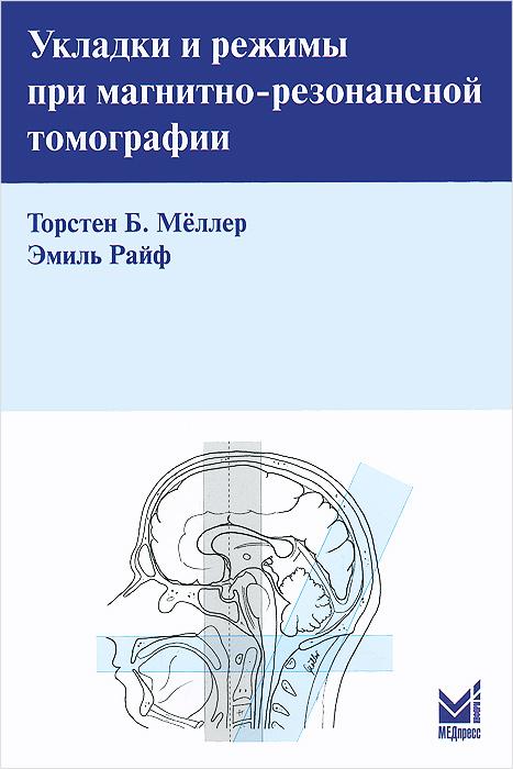 Укладки и режимы при магнитно-резонансной томографии
