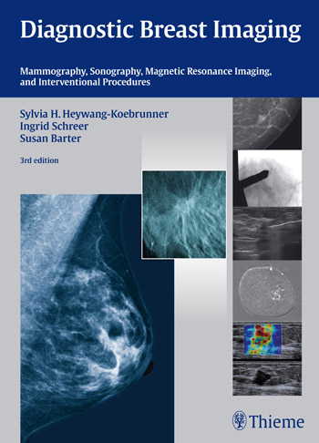 Diagnostic Breast Imaging: Mammography, Sonography, Magnetic Resonance Imaging, and Interventional Procedures diagnostic aids in potentially malignant disorders and malignancies