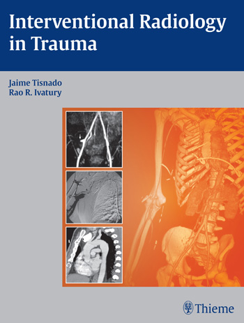 Interventional Radiology in Trauma psychotherapeutic treatment of trauma in northern ireland