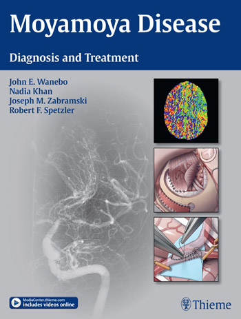 Moyamoya Disease: Diagnosis and Treatment atamjit singh pal paramjit kaur khinda and amarjit singh gill diagnostic aspects and treatment planning in implants