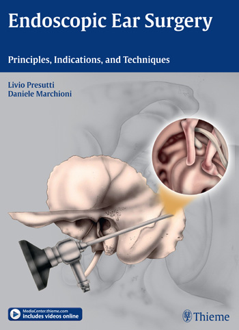 Endoscopic Ear Surgery: Principles, Indications, and Techniques cryosurgery in oral and maxillofacial surgery