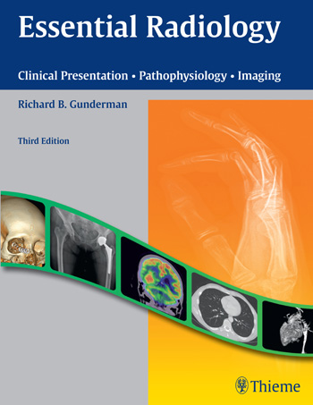 Essential Radiology: Clinical Presentation Pathophysiology Imaging image receptors in radiology