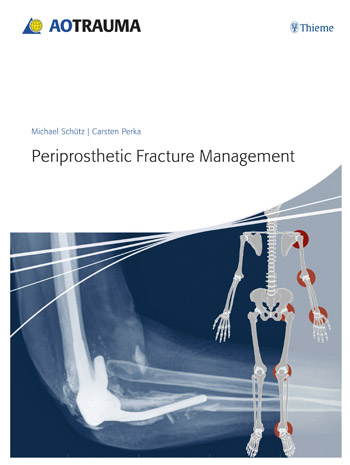 Periprosthetic Fracture Management knowledge management – classic