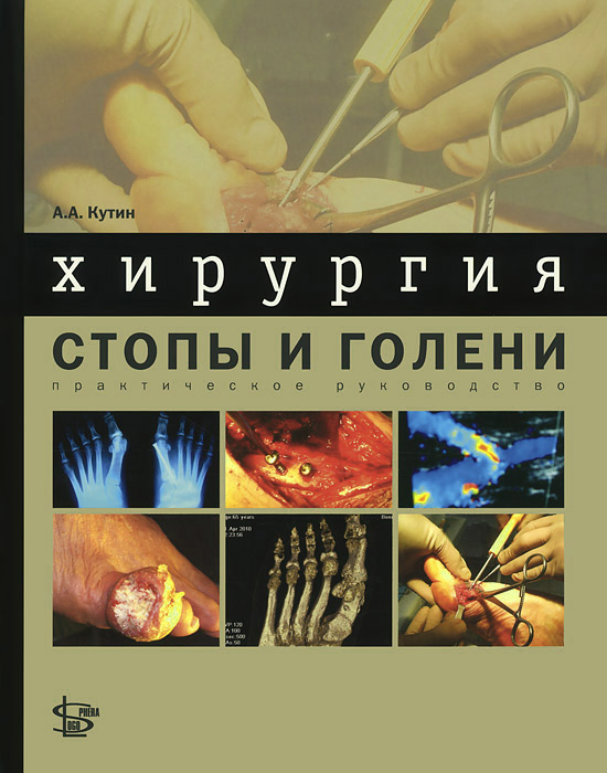 Хирургия стопы и голени. Практическое руководство. А. А. Кутин