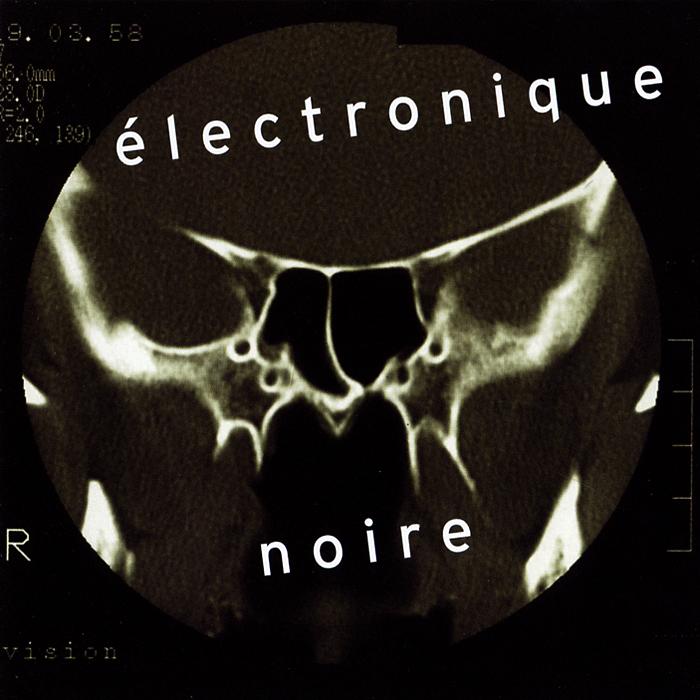 Eivind Aarset. Electronique Noire