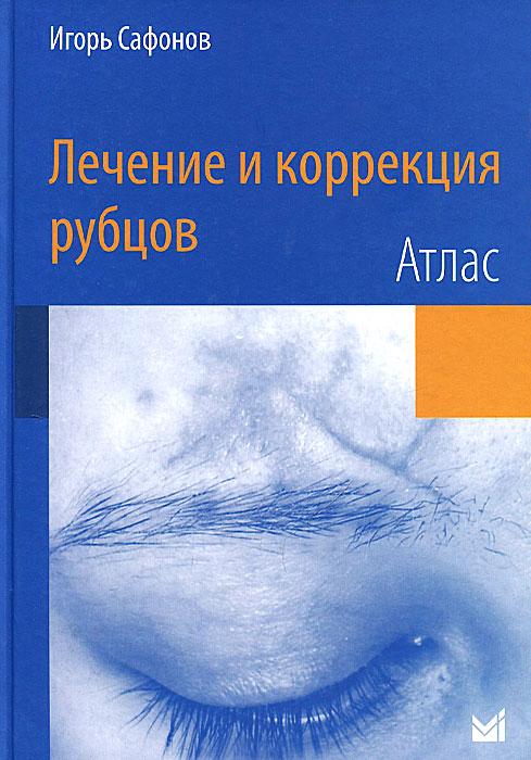 Лечение и коррекция рубцов. Атлас. Игорь Сафонов