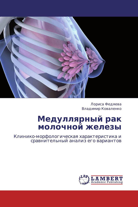 Скачать Медуллярный рак молочной железы быстро