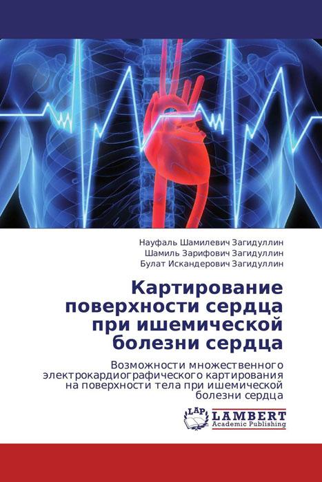 Картирование поверхности сердца   при ишемической болезни сердца беда от нежного сердца