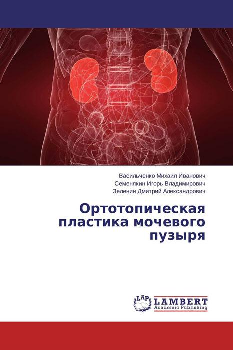 Ортотопическая пластика мочевого пузыря прогнозирование течения рака мочевого пузыря