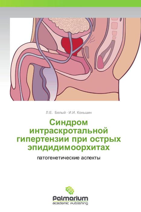 Синдром интраскротальной гипертензии при острых эпидидимоорхитах