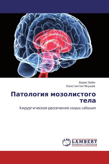 Патология мозолистого тела