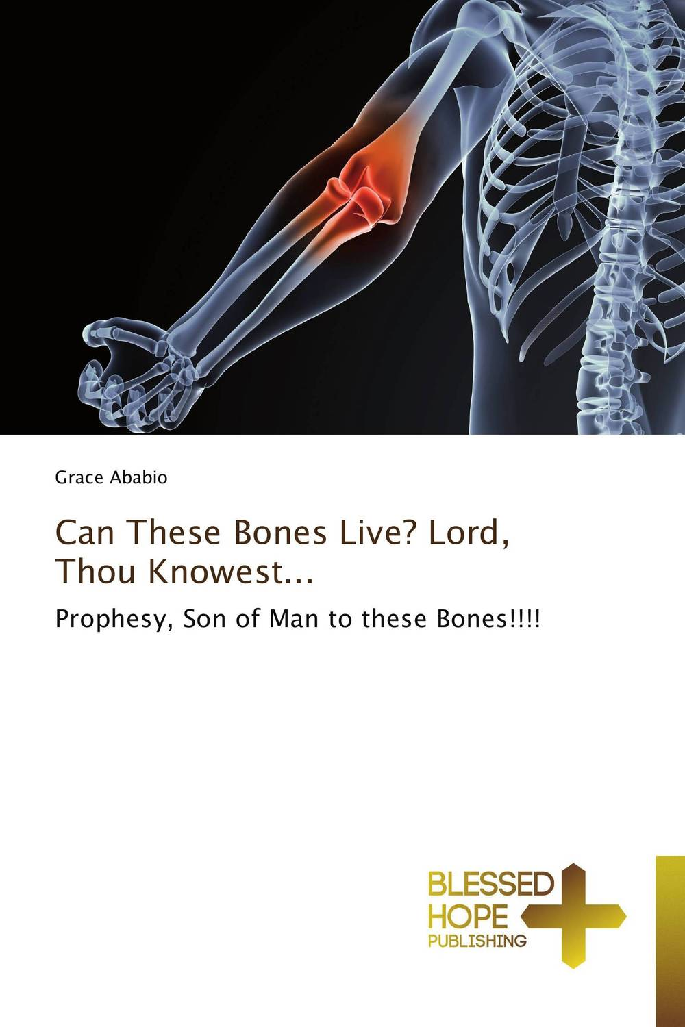 Can These Bones Live? Lord, Thou Knowest... yuxia wang thou shalt love