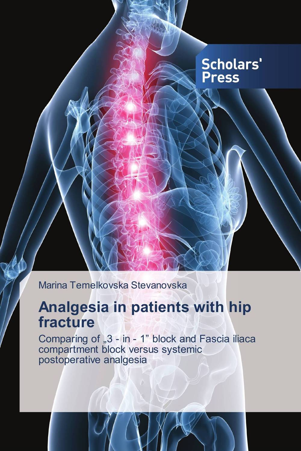 Analgesia in patients with hip fracture analgesia in patients with hip fracture