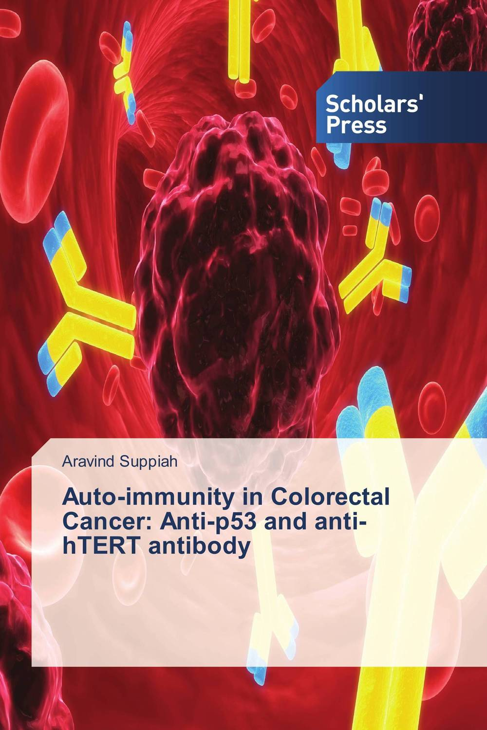 Auto-immunity in Colorectal Cancer: Anti-p53 and anti-hTERT antibody colorectal cancer