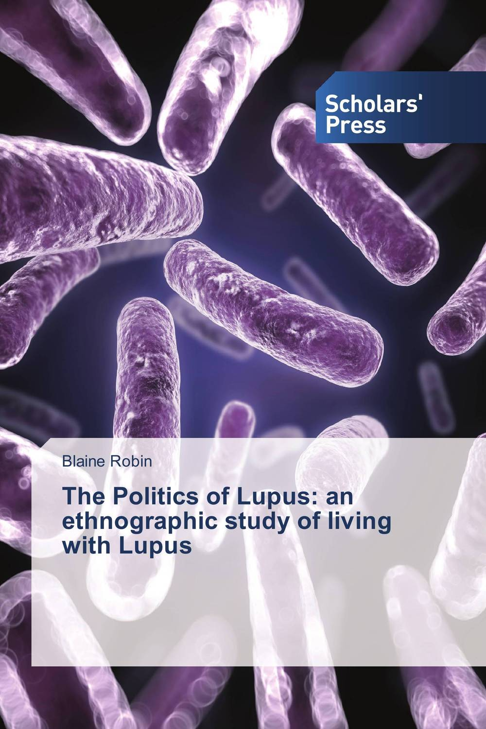 The Politics of Lupus: an ethnographic study of living with Lupus ethnographic study of traditional pottery making artisan women