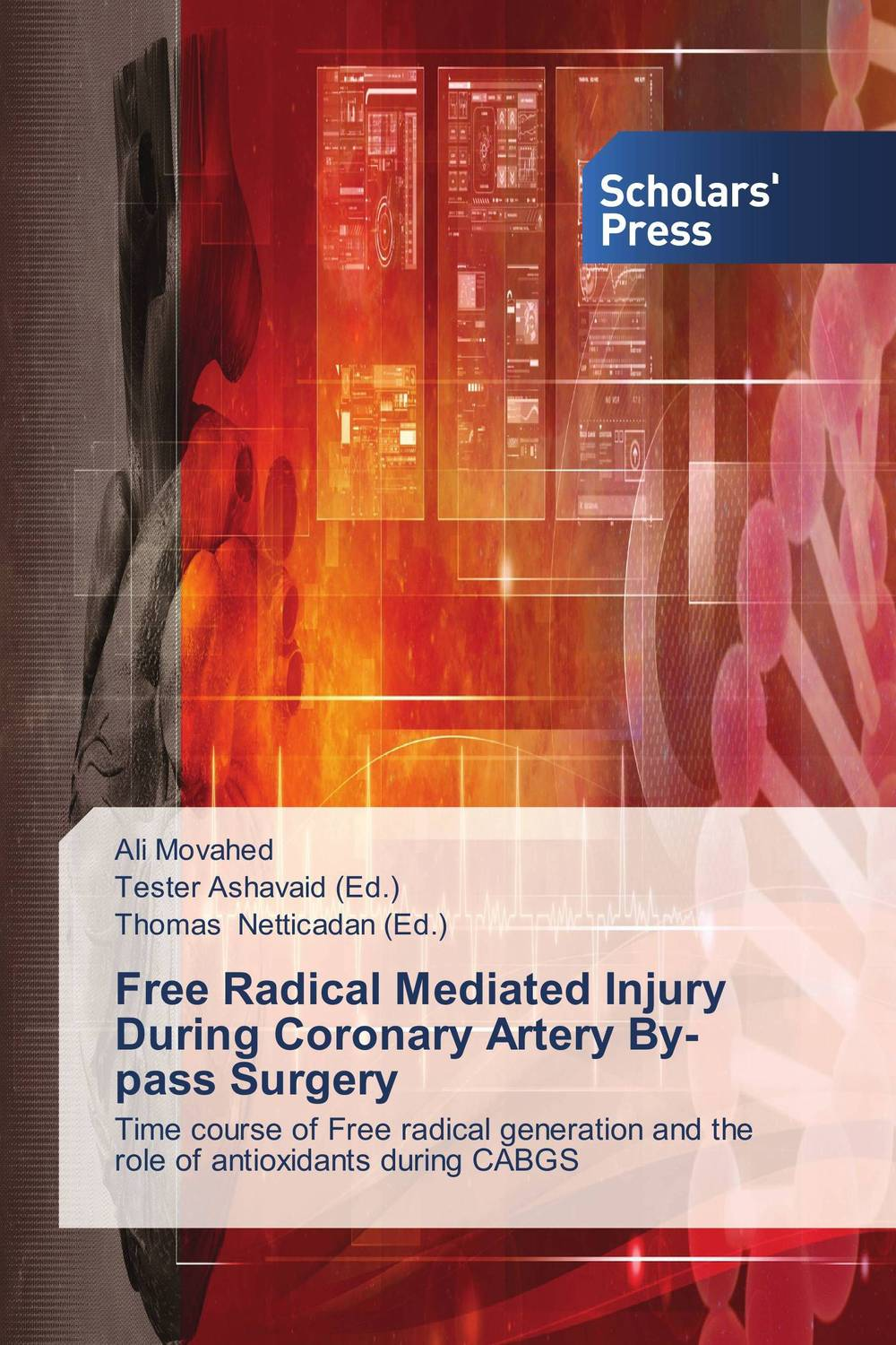 Free Radical Mediated Injury During Coronary Artery By-pass Surgery  michael silaev the kinetic investigation of the free radical addition