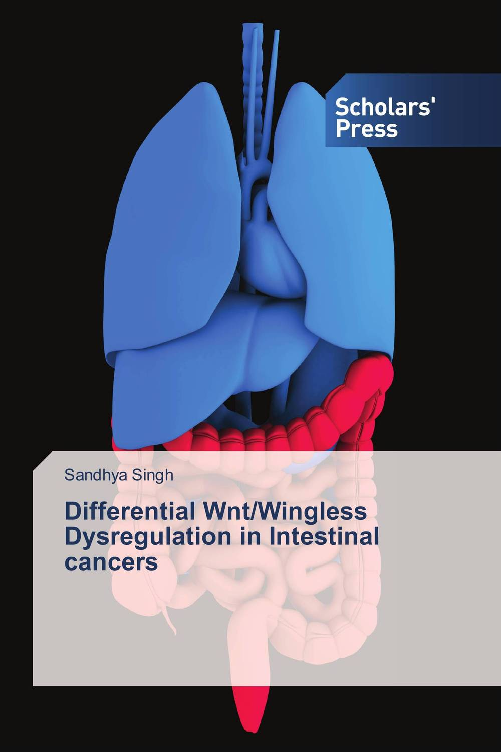 Differential Wnt/Wingless Dysregulation in Intestinal cancers fhit a hit in human cancers