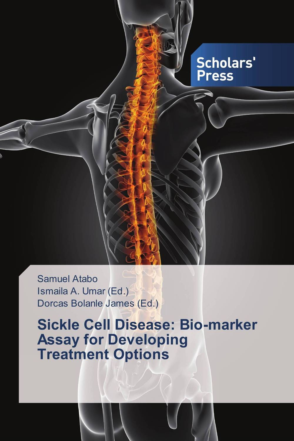 Sickle Cell Disease: Bio-marker Assay for Developing Treatment Options farm hand forged spring steel sickle king chai sickle weeding knife grinding the blade free firewood