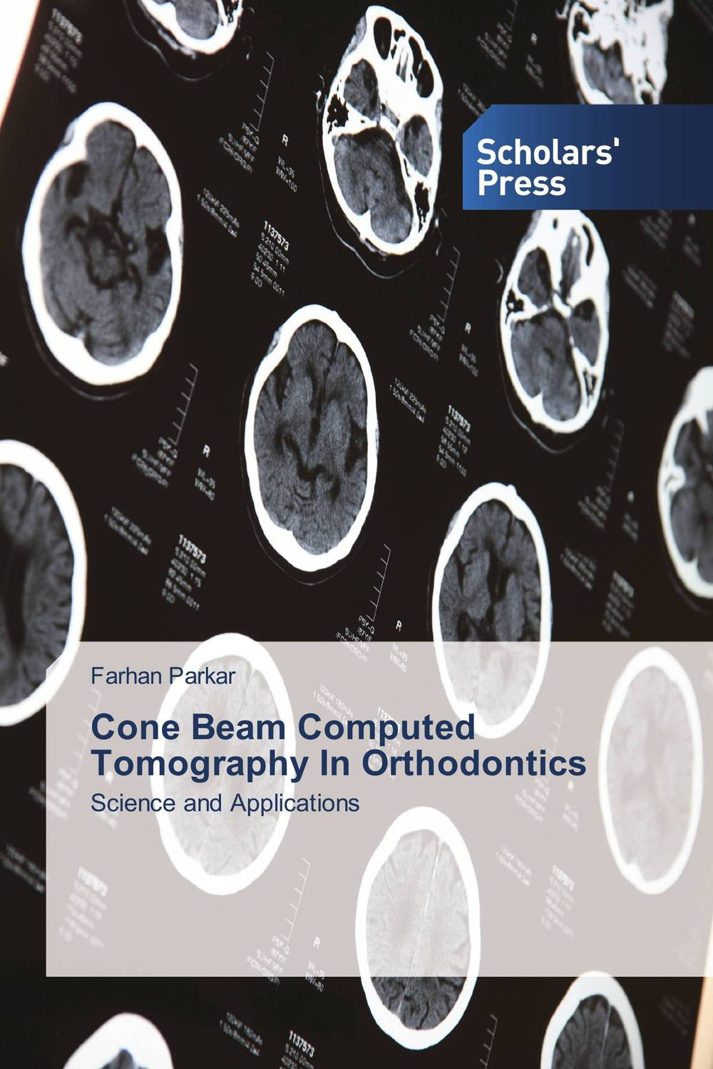Cone Beam Computed Tomography In Orthodontics farhood saremi revisiting cardiac anatomy a computed tomography based atlas and reference