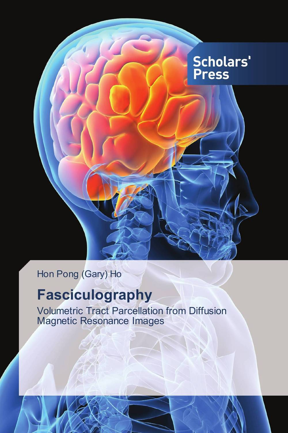 Fasciculography modification in knn