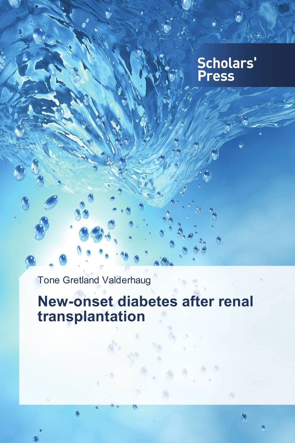 New-onset diabetes after renal transplantation transplantation