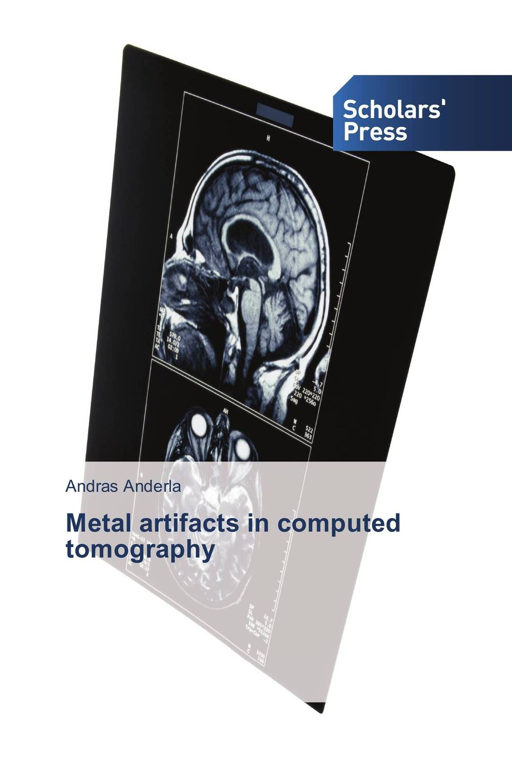 Metal artifacts in computed tomography farhood saremi revisiting cardiac anatomy a computed tomography based atlas and reference