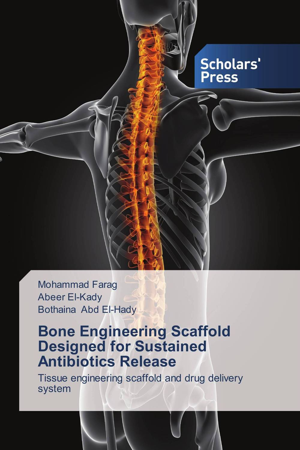 Bone Engineering Scaffold Designed for Sustained Antibiotics Release prediction of bone length from bone fragments