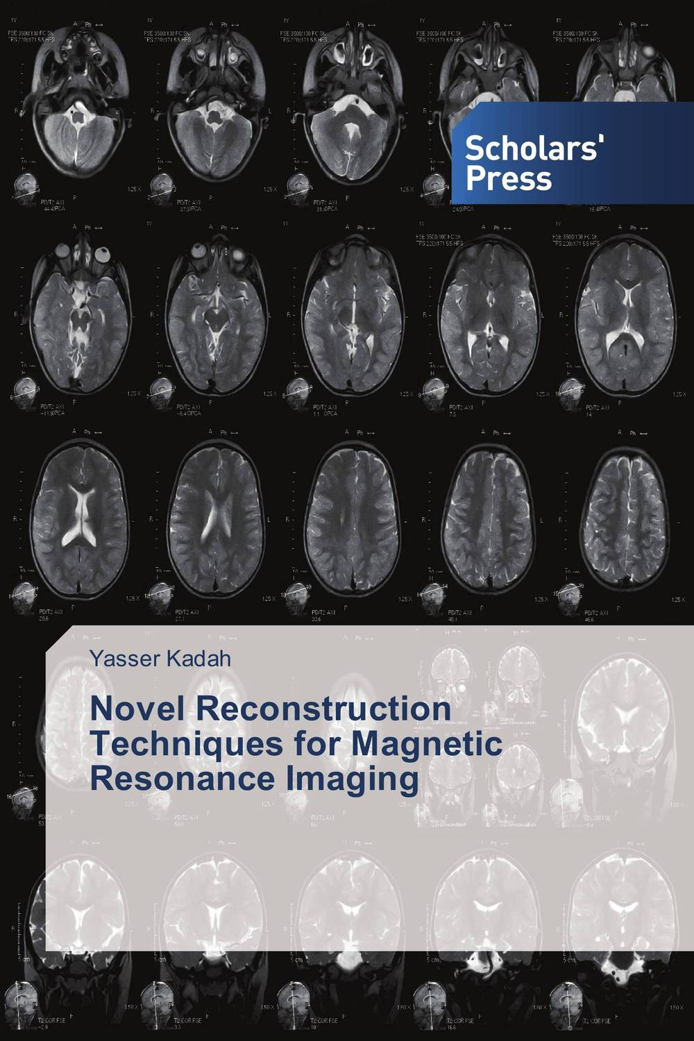 Novel Reconstruction Techniques for Magnetic Resonance Imaging reconstruction in philosophy
