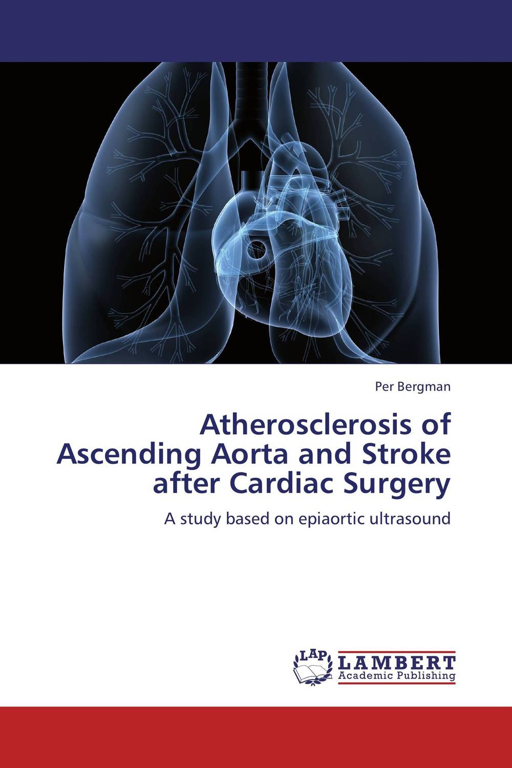 Atherosclerosis of Ascending Aorta and Stroke after Cardiac Surgery guy clapperton this is social media tweet blog link and post your way to business success