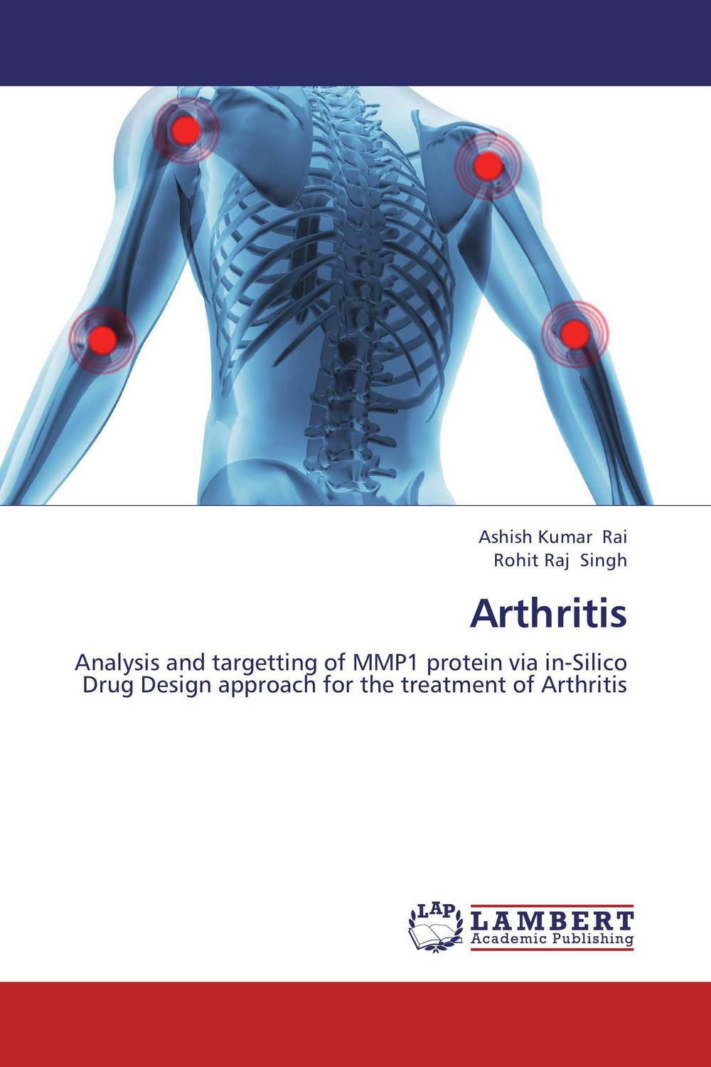 Arthritis gelatinase mmp 2 mmp 9 and aminopeptidase n cd13 in breast carcinoma