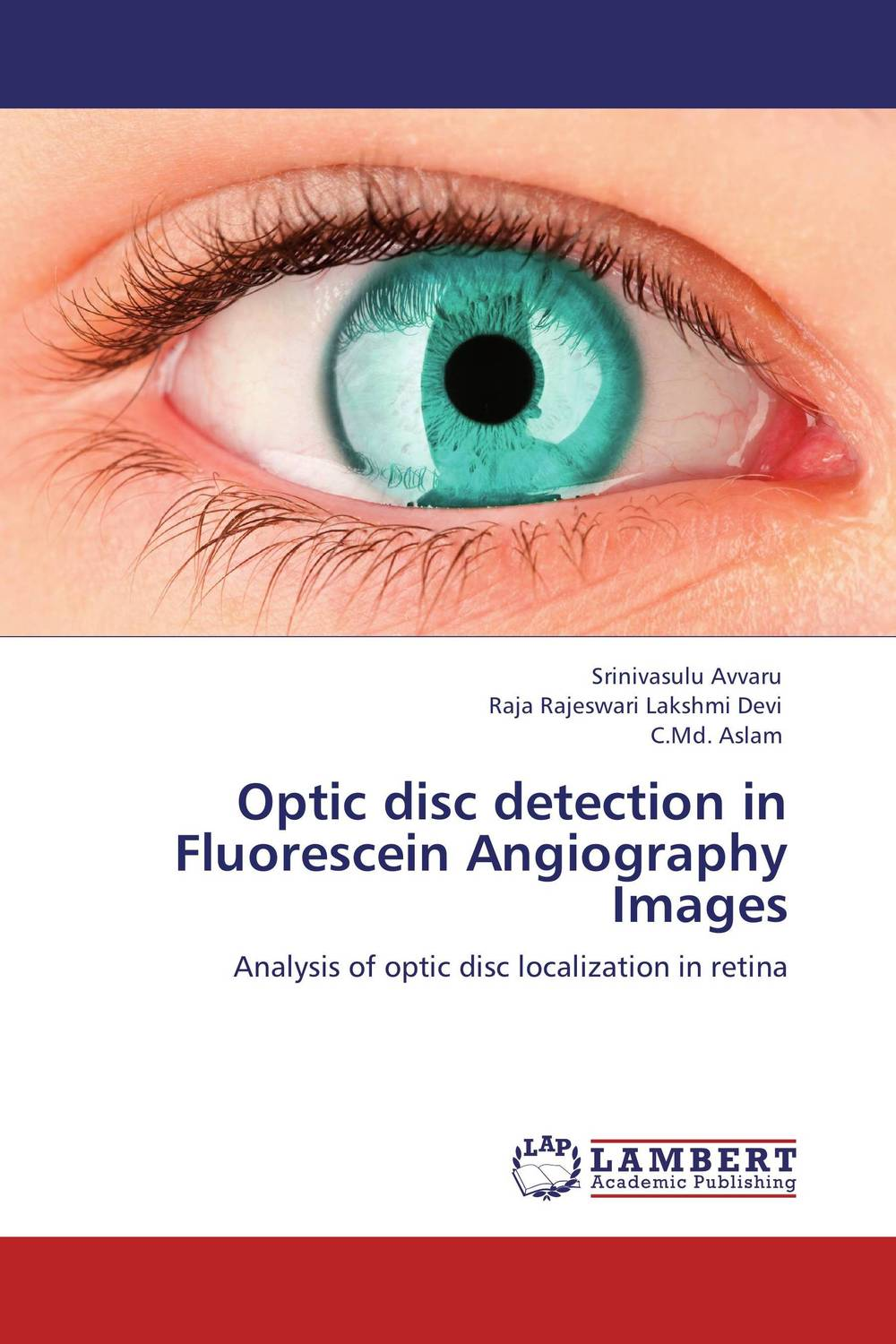 Optic disc detection in Fluorescein Angiography Images in situ detection of dna damage methods and protocols