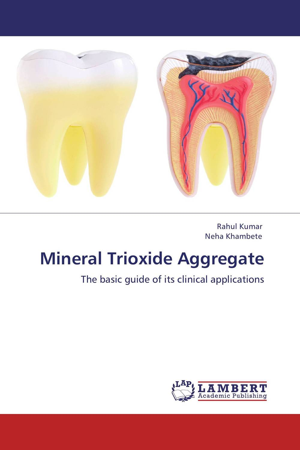 Mineral Trioxide Aggregate the teeth with root canal students to practice root canal preparation and filling actually