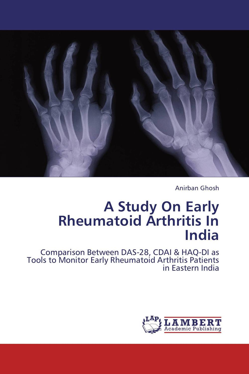 A Study On Early Rheumatoid Arthritis In India new techniques for early diagnosis of rheumatoid arthritis