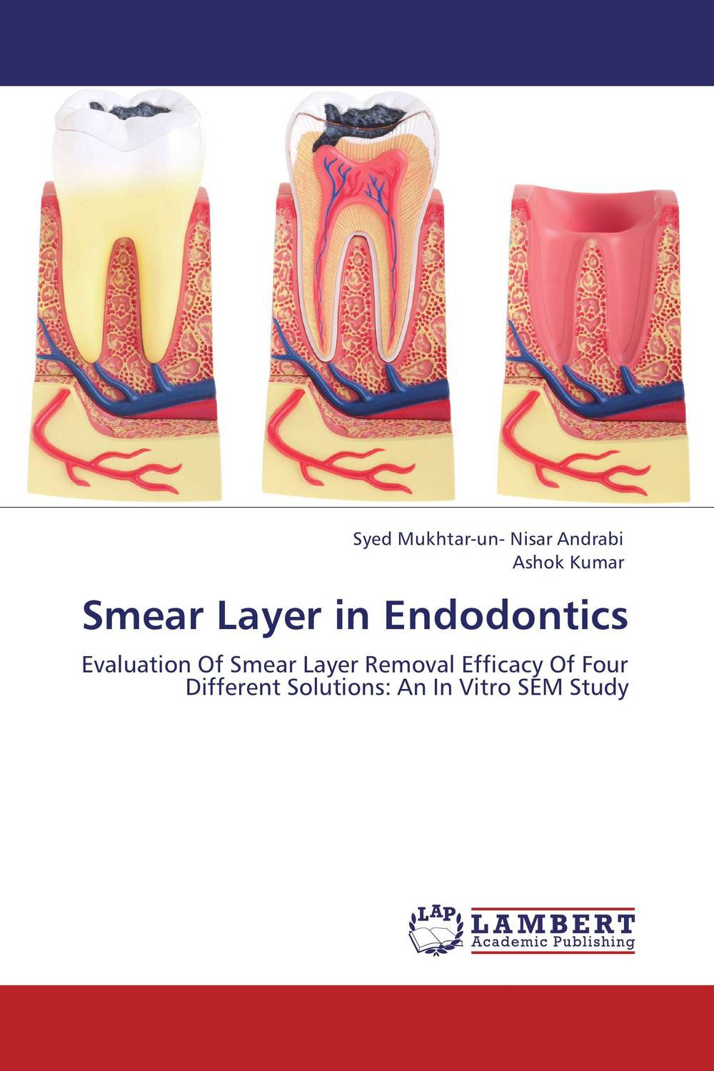 Smear Layer in Endodontics root and canal morphology of third molar