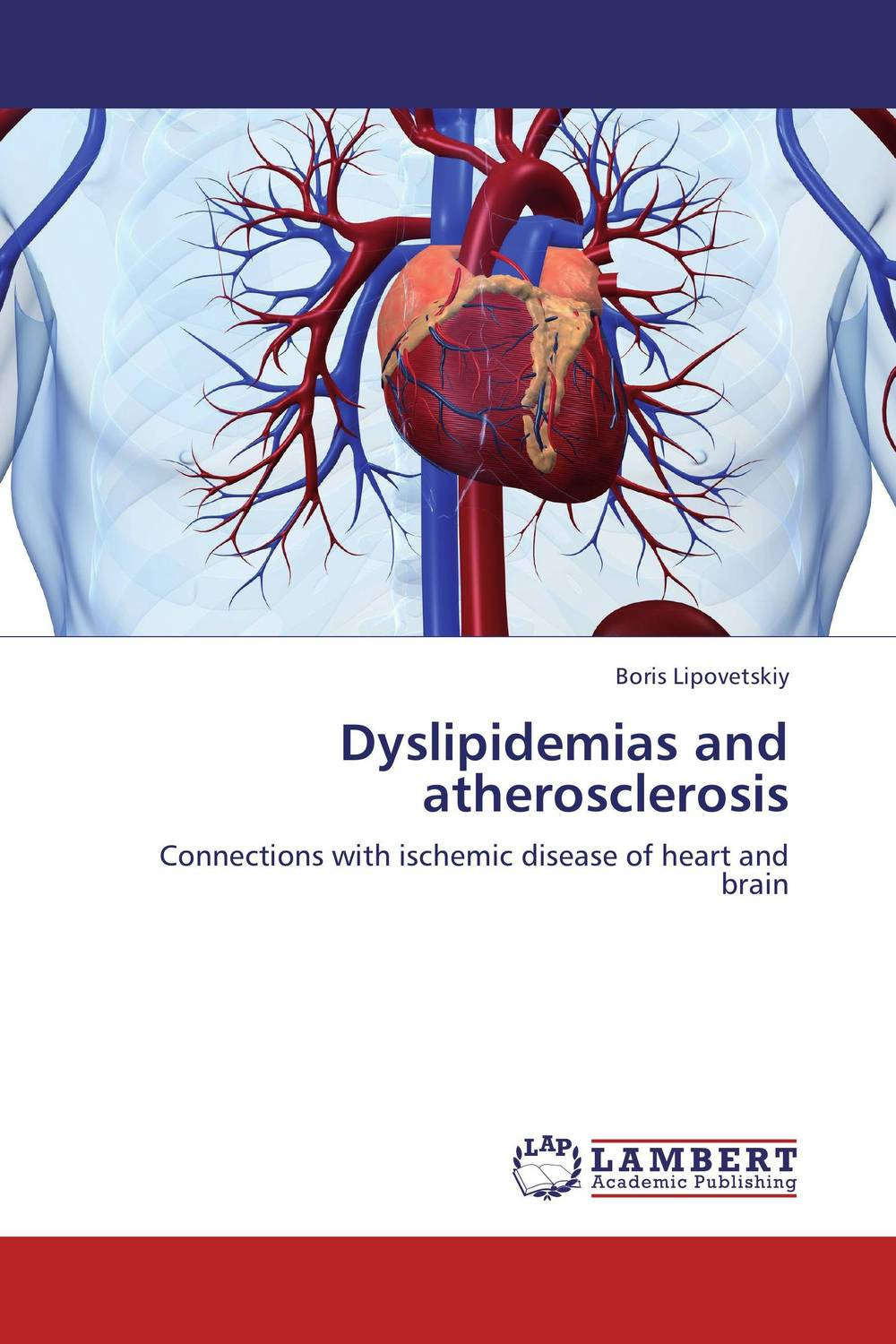 Dyslipidemias and atherosclerosis effect of ischemic heart disease on the audiovestibular functions